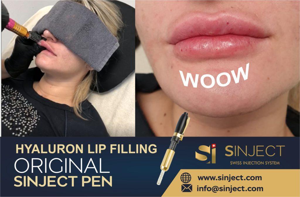 hyaluron pen - sinject needle free injection